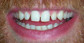 anterior_crowns_before