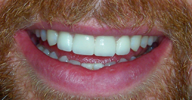 anterior_crowns_after