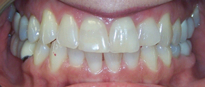 Veneers_Before_1