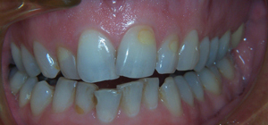 Veneers_Before_2