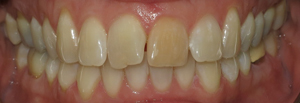 Veneers_Before_3