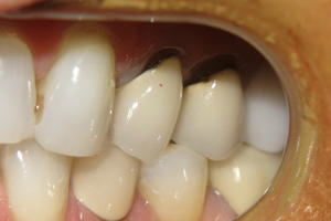 Cerec_Before_1