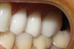 Cerec_After_1