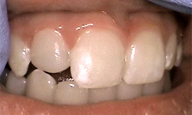 anterior_composite_after
